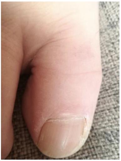 Palec u nohy postižený plísní po ošetření Franailem
