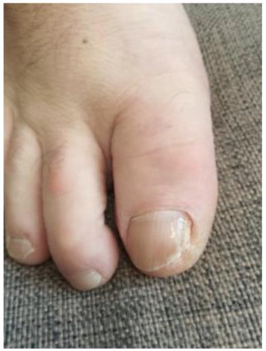 Palec u nohy postižený plísní