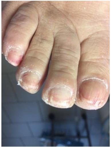 Pokročilá plíseň nehtů u nohou po aplikaci Franailu