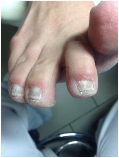 Pokročilá plíseň nehtů u nohou